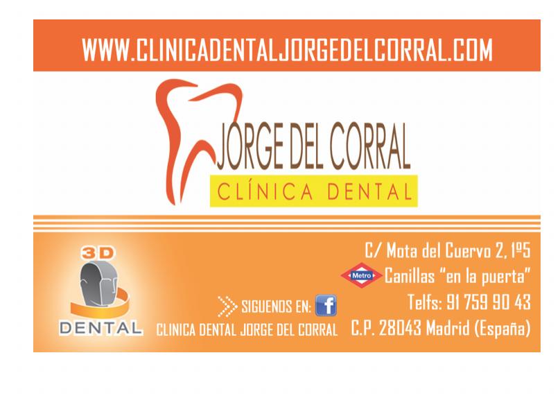 Carillas dentales estéticas en Madrid