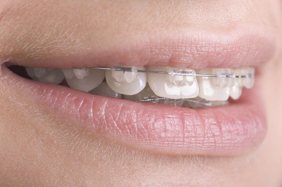dentista ortodoncia hortaleza, clínica dental ortodoncia hortaleza
