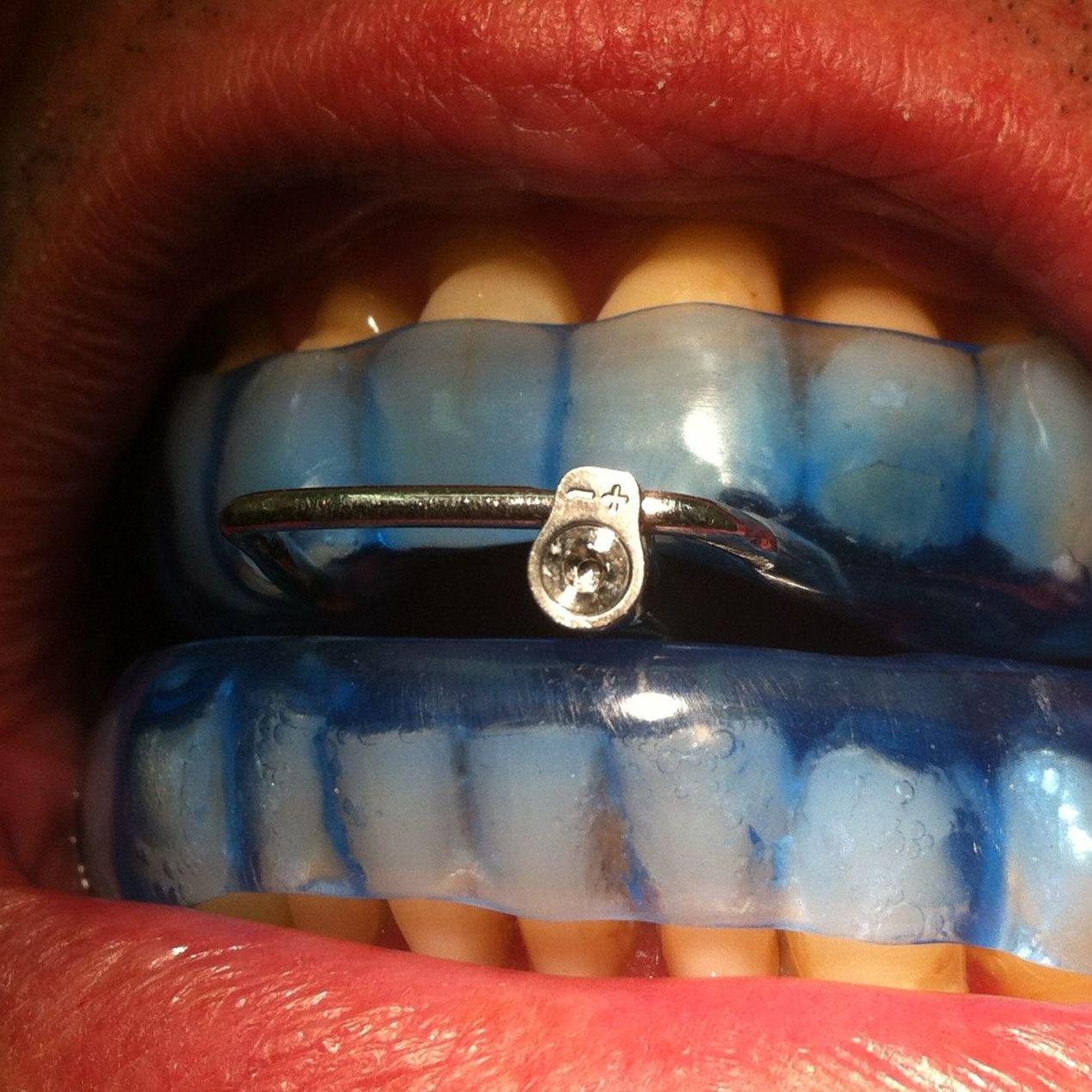 dispositivo de avance mandibular,D.A.M,apnea del sueño,antirronquidos,