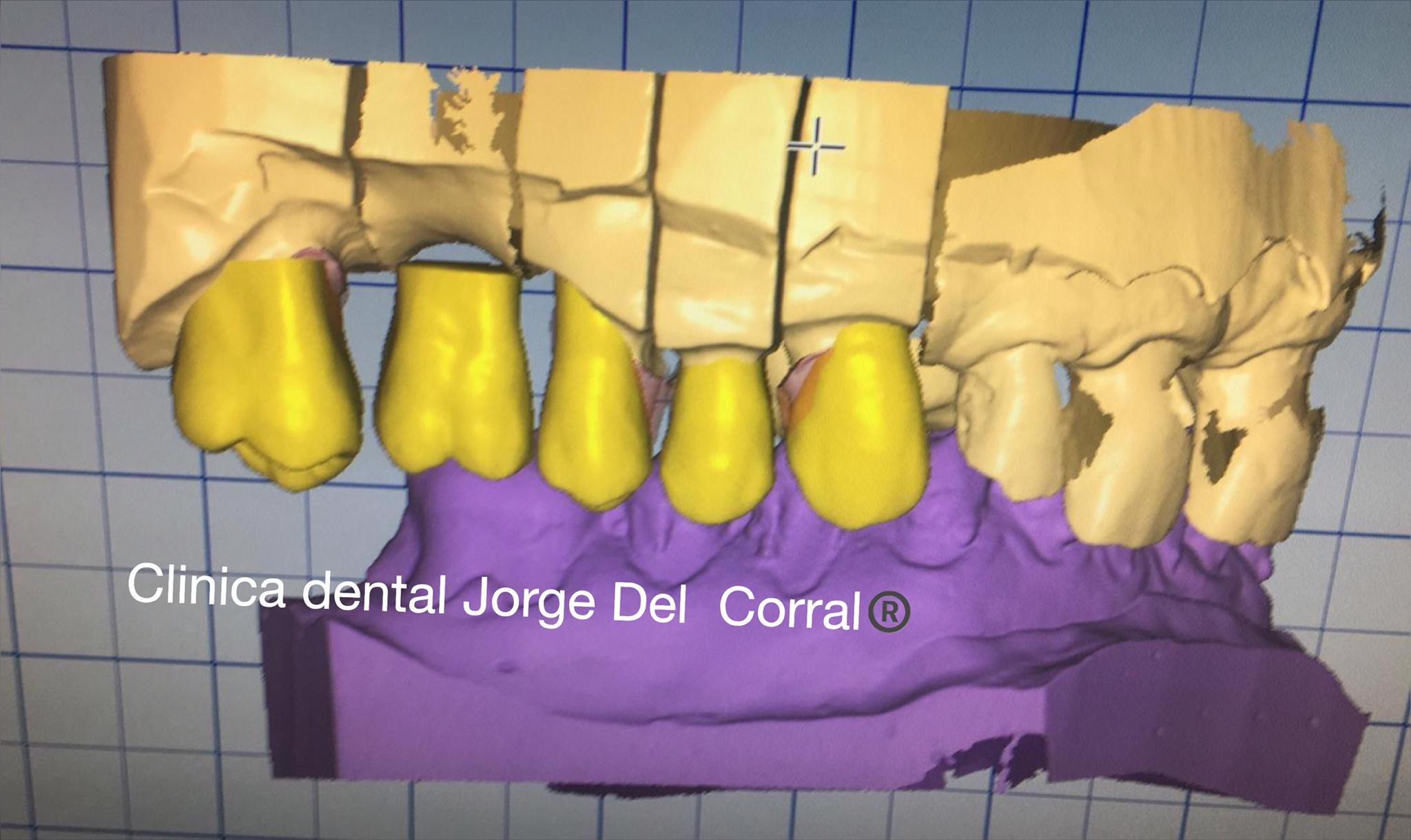 Fotos protesis dentales Hortaleza