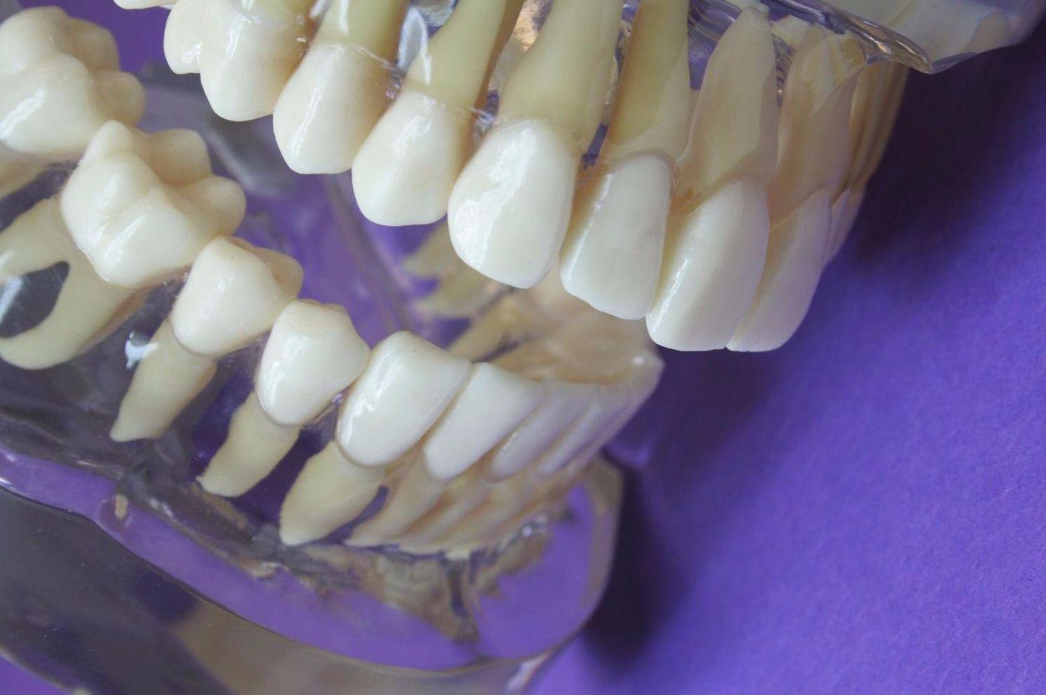 dentista san chinarro,hortaleza