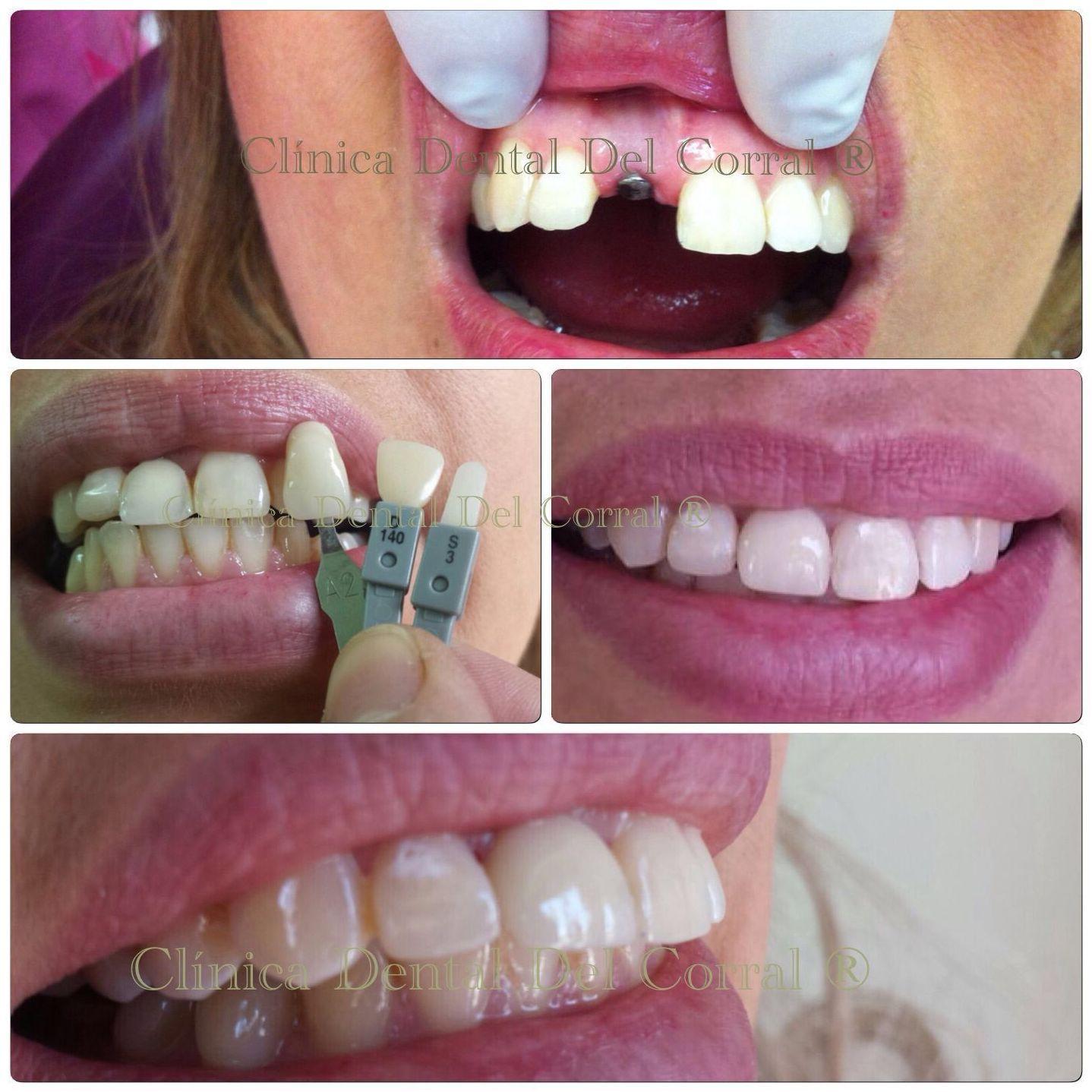 Especialistas dentales en Hortaleza