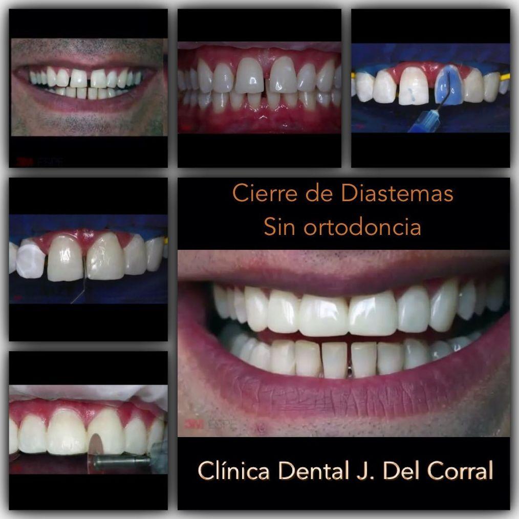 Dentista hortaleza, clínica dental hortaleza.