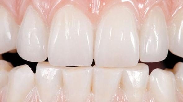 Estética Dental - Protesis Fija Zirconio Monolitico