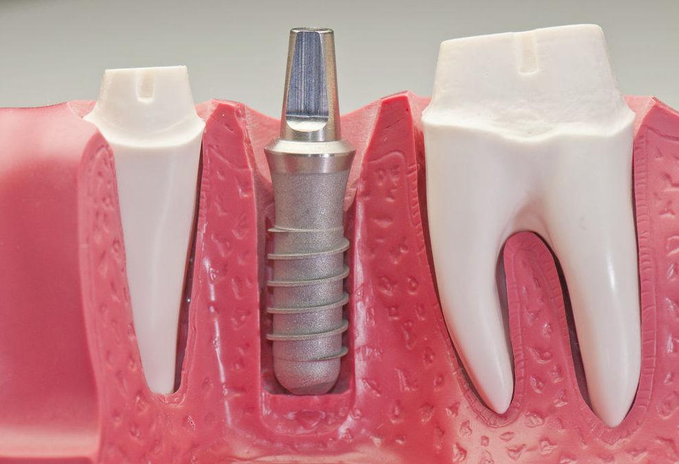 implante dental,dentistas en hortaleza,clínicas dentales en hortaleza,dentista hortaleza,clínica dental hortaleza,