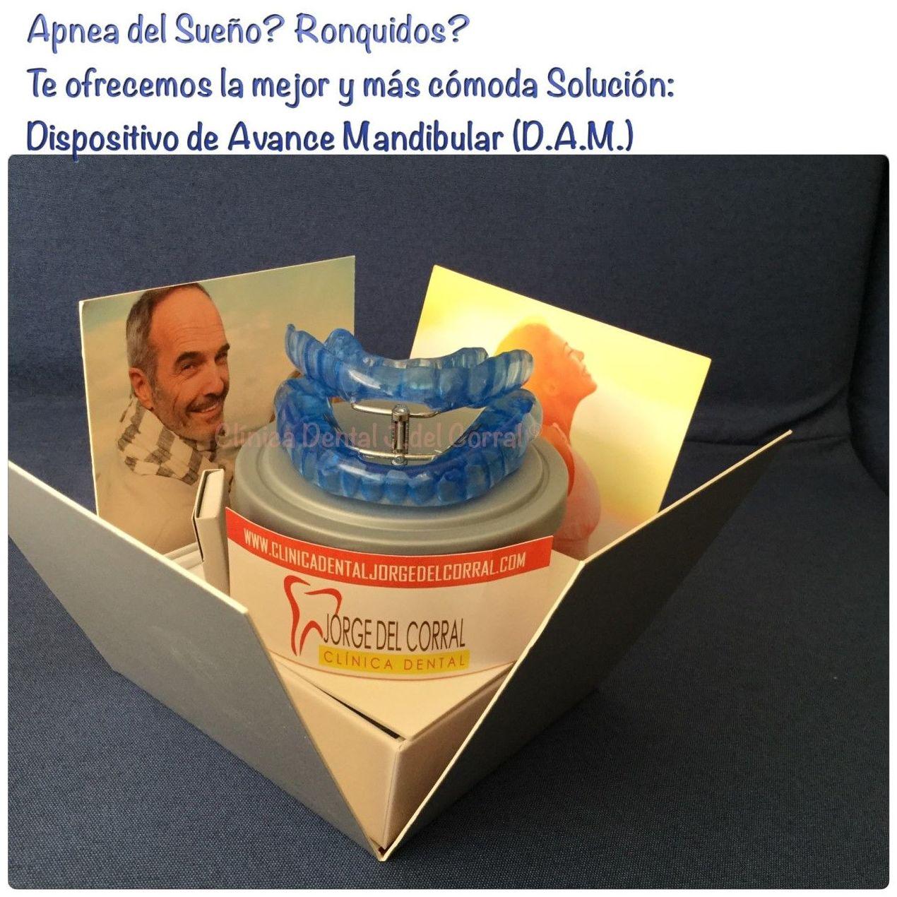 prótesis apnea del sueño,apnea del sueño,dispositivo de avance mandibular,(D.A.M),dam,prótesis antironquidos,apnea del sueño,aparato antironquidos.