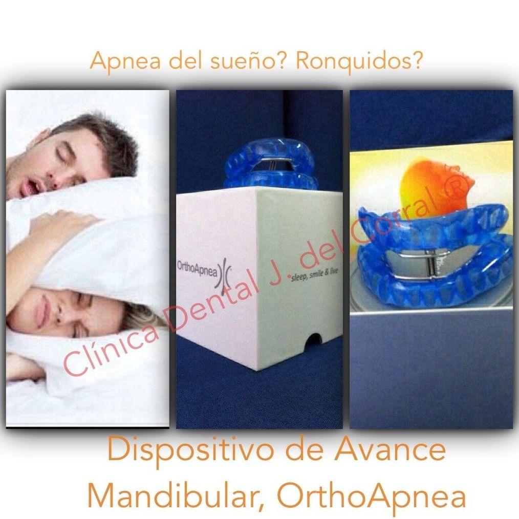 clínica dental Madrid,dentista madrid,clínicas dentales en Madrid,dentistas en Madrid,prótesis apnea del sueño,apnea del sueño,dispositivo de avance mandibular,(D.A.M.),dam,prótesis antirronquidos,aparato antirronquidos.