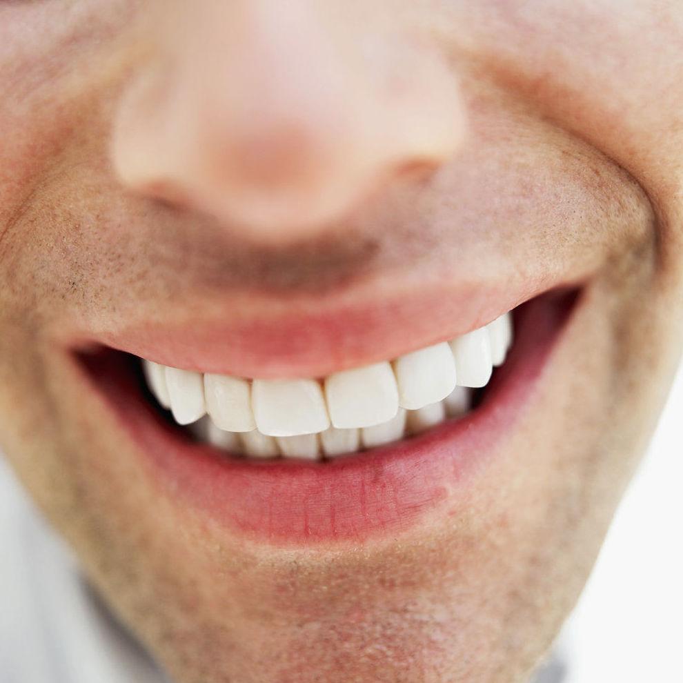 carillas dentales,dentistas en hortaleza,clínicas dentales en hortaleza,dentista hortaleza,clínica dental hortaleza,