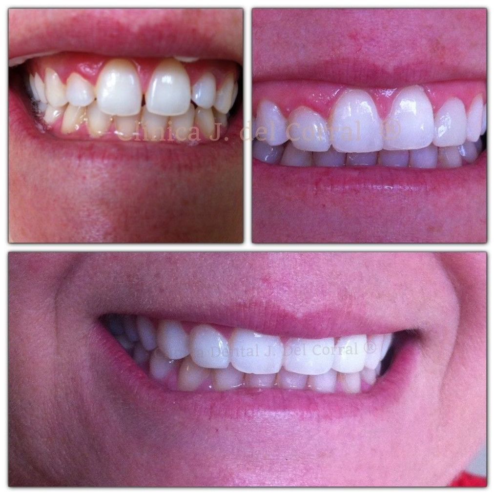 dentistas en Madrid,clínica dental Madrid,dentista carillas dentales Madrid.