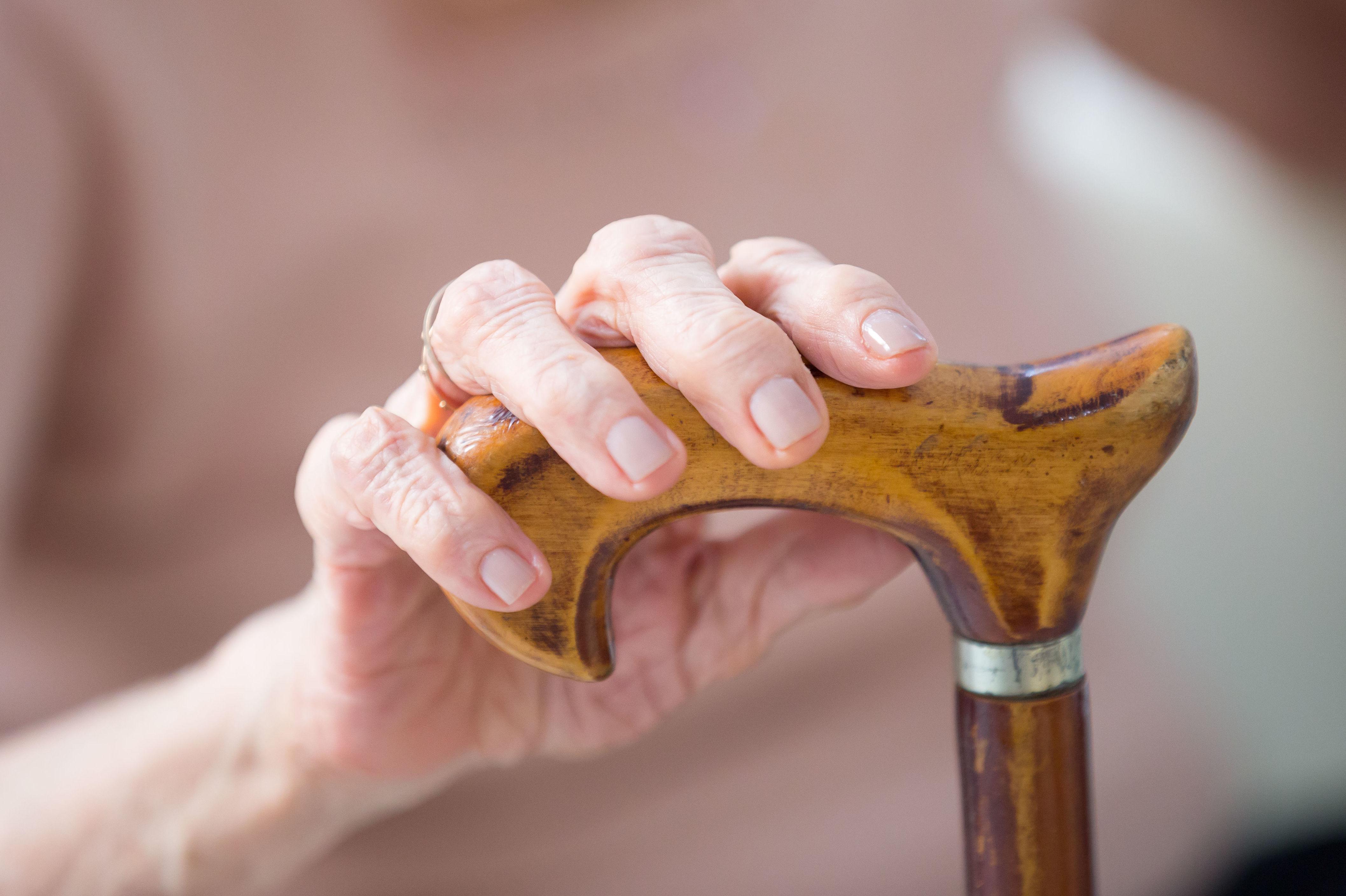 Se vinculan los trastornos vasculares con Alzheimer
