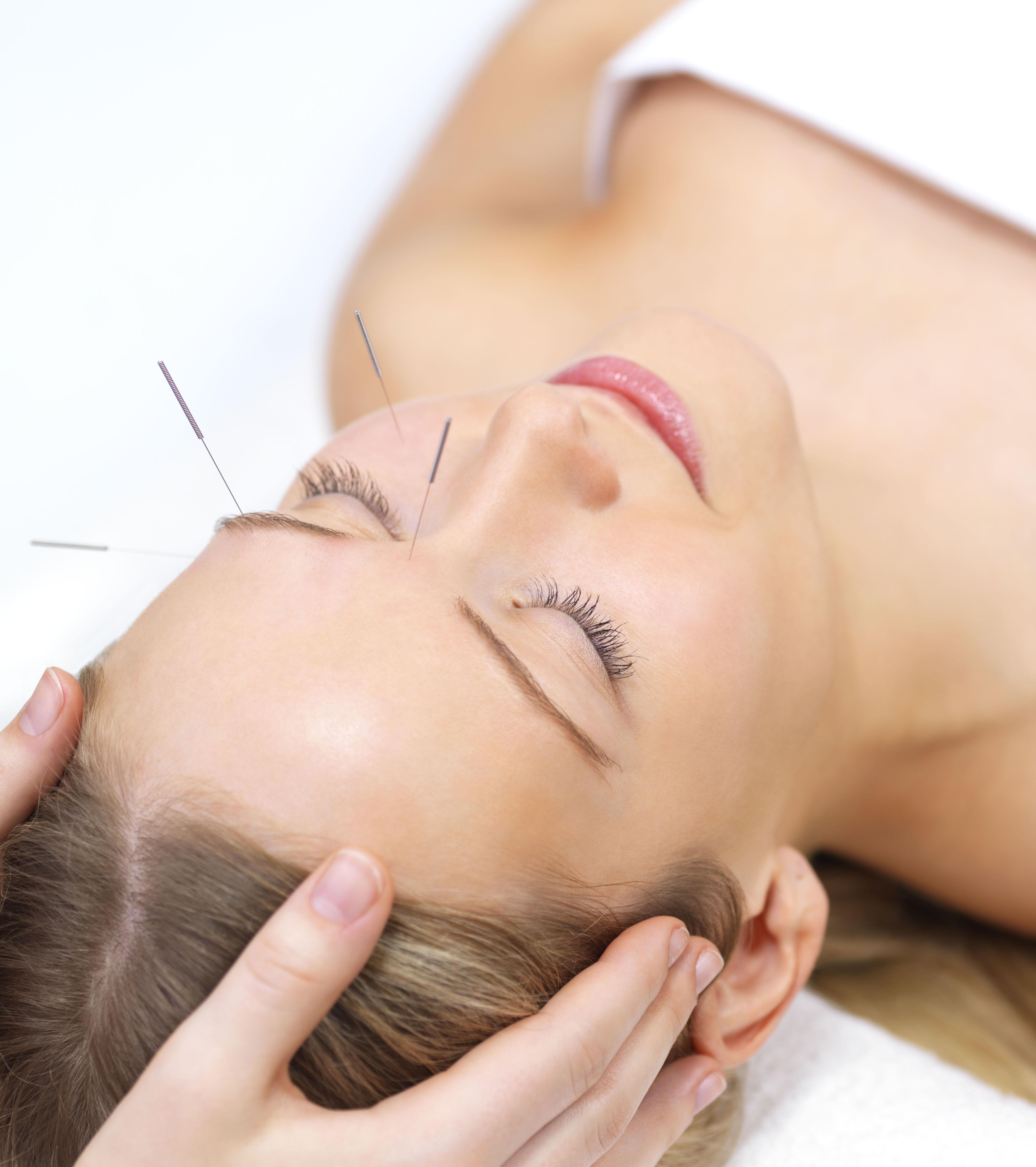 Tratamientos de acupuntura en Chamartín