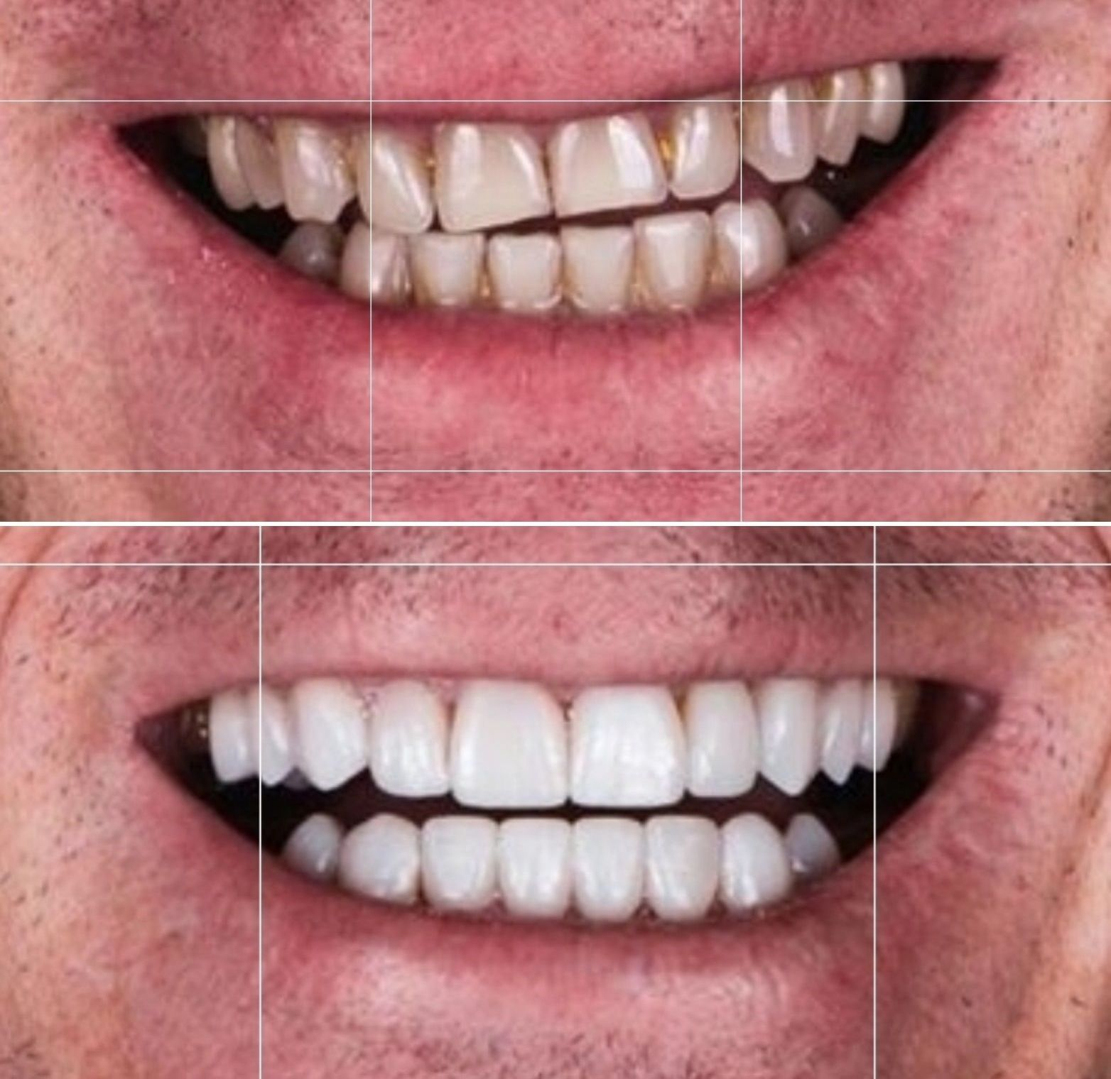 Foto 1 de Especialistas en implantología y ortodoncia en  | Clínica dental ulident