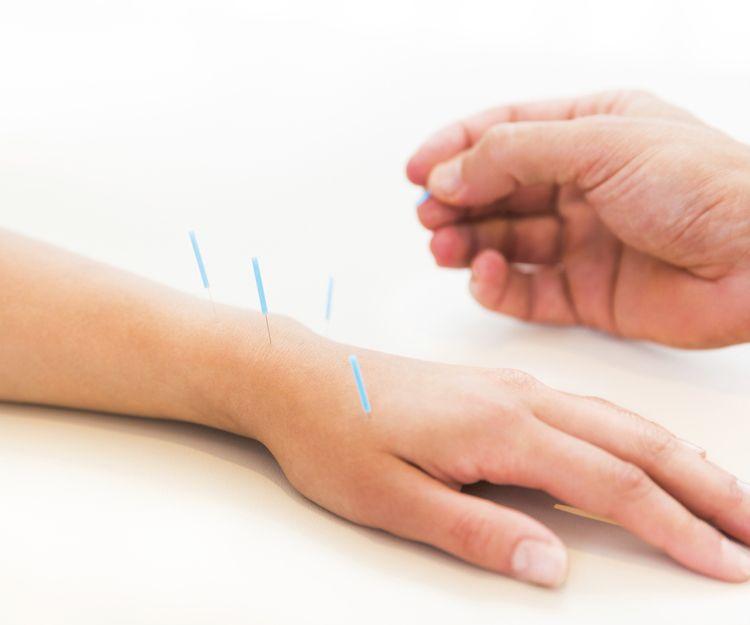 Tratamientos corporales y acupuntura en Avilés, Asturias