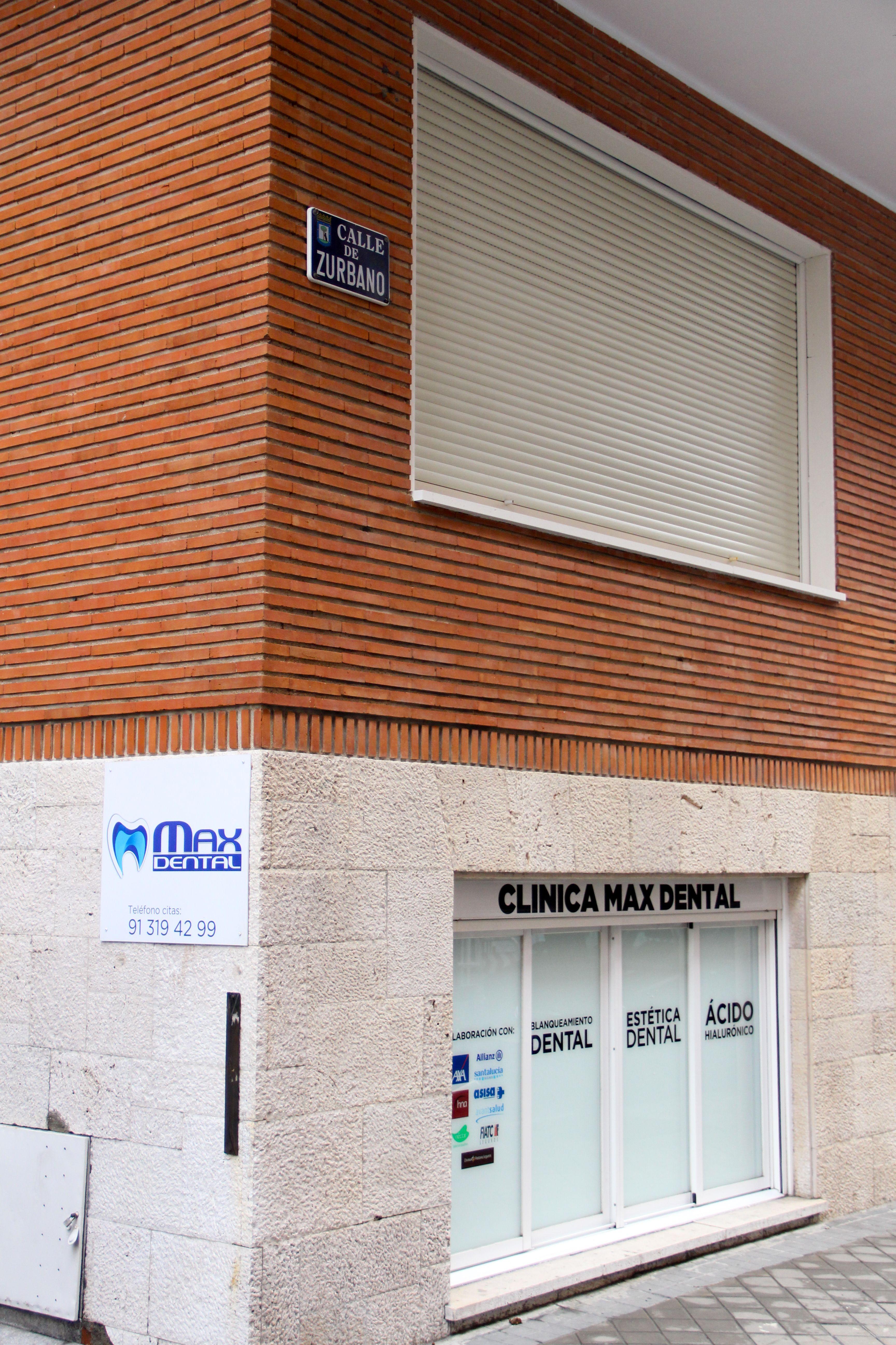 Clínica dental en Madrid centro, Max Dental