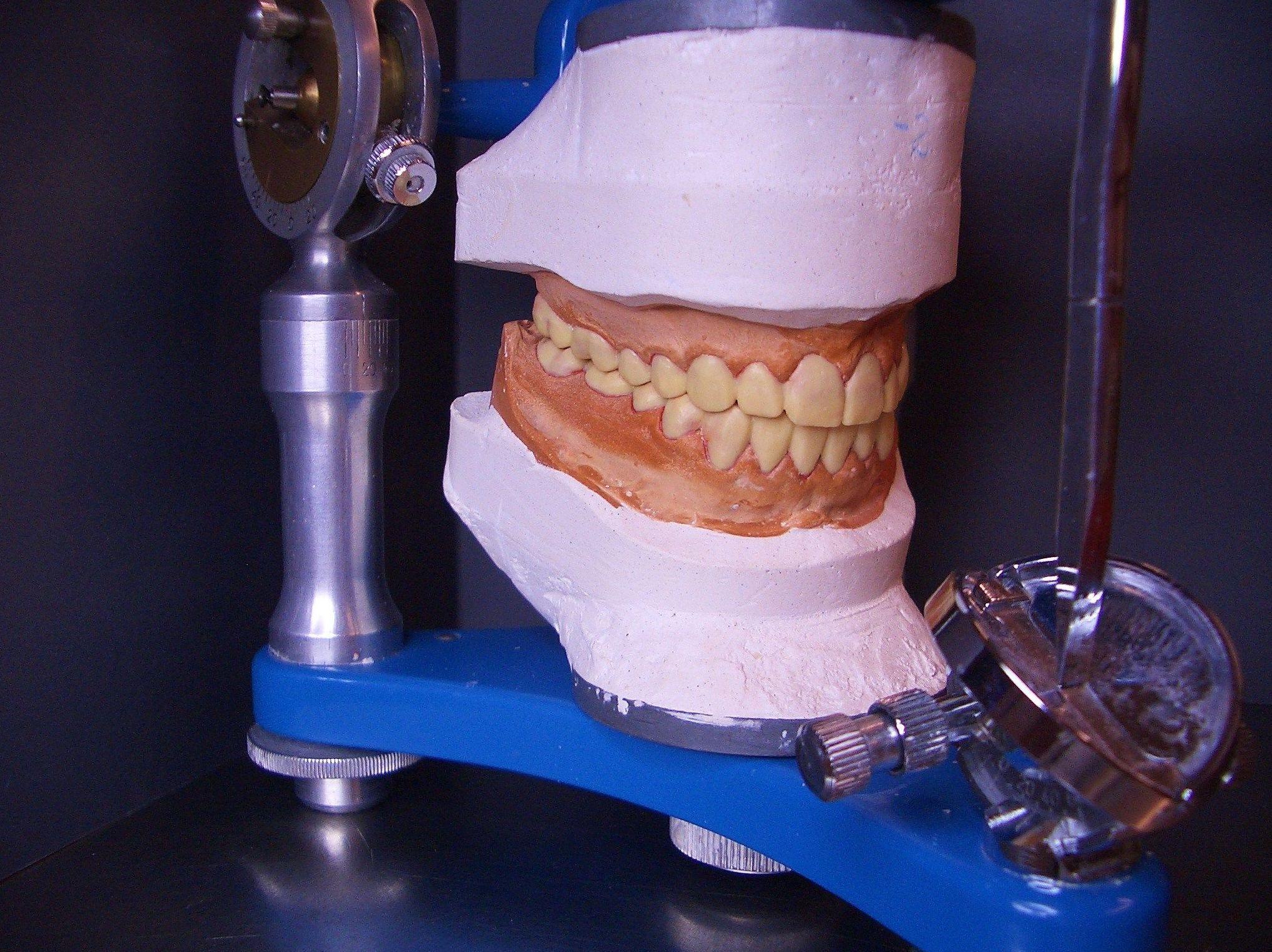 Foto 9 de Laboratorio protésico dental en Sevilla | Atenas Laboratorio Dental