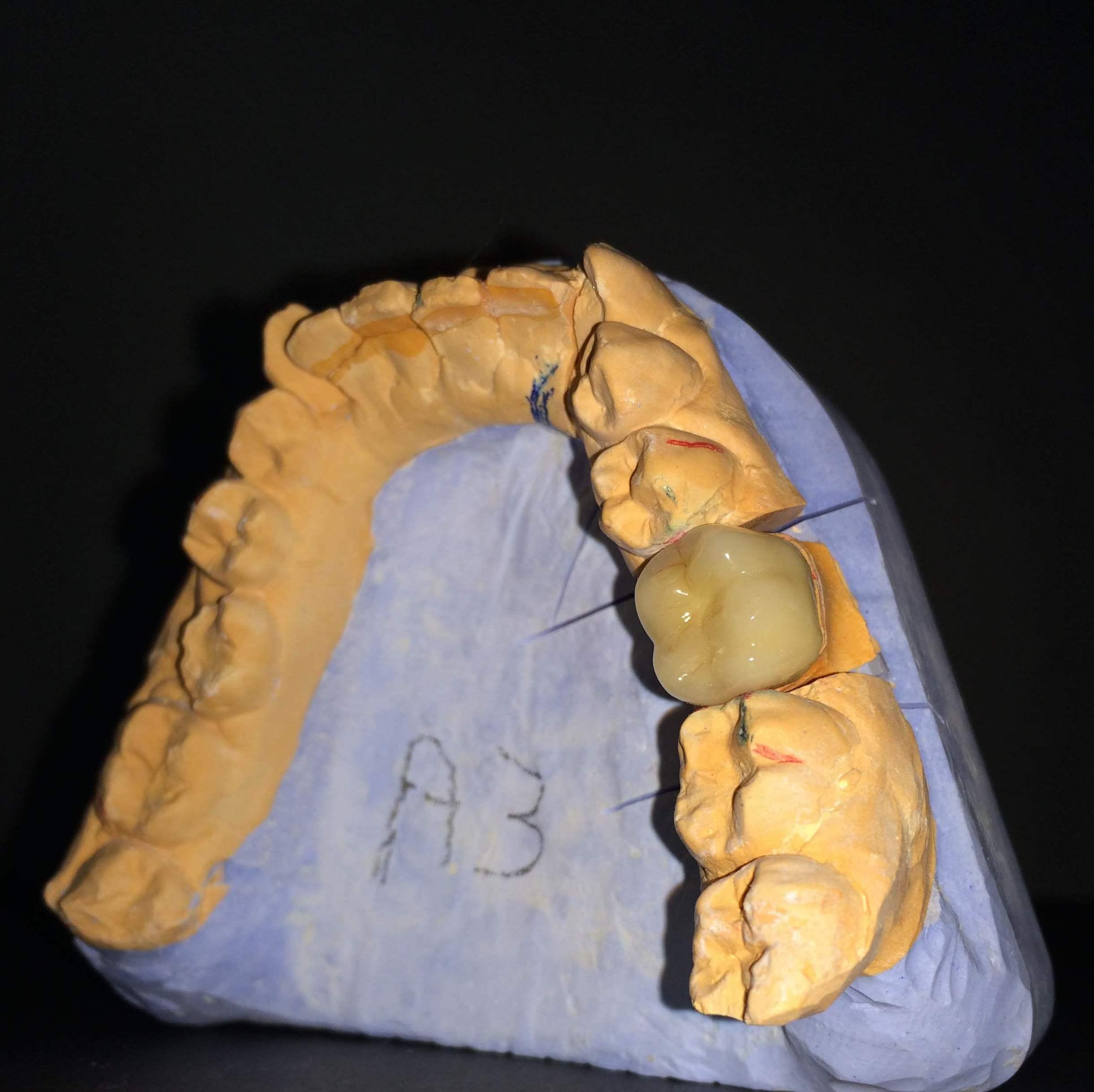 Foto 7 de Laboratorio protésico dental en Sevilla   Atenas Laboratorio Dental