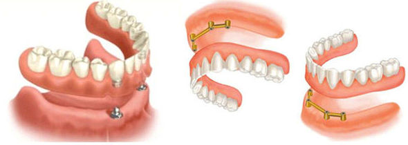 Implantes dentales, dentadura completa sobre implantes: Tratamientos de Clínica Dental Neardental