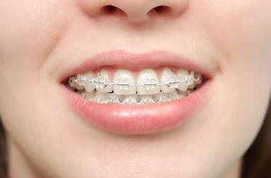 Ortodoncia: Tratamientos de Clínica Dental Neardental