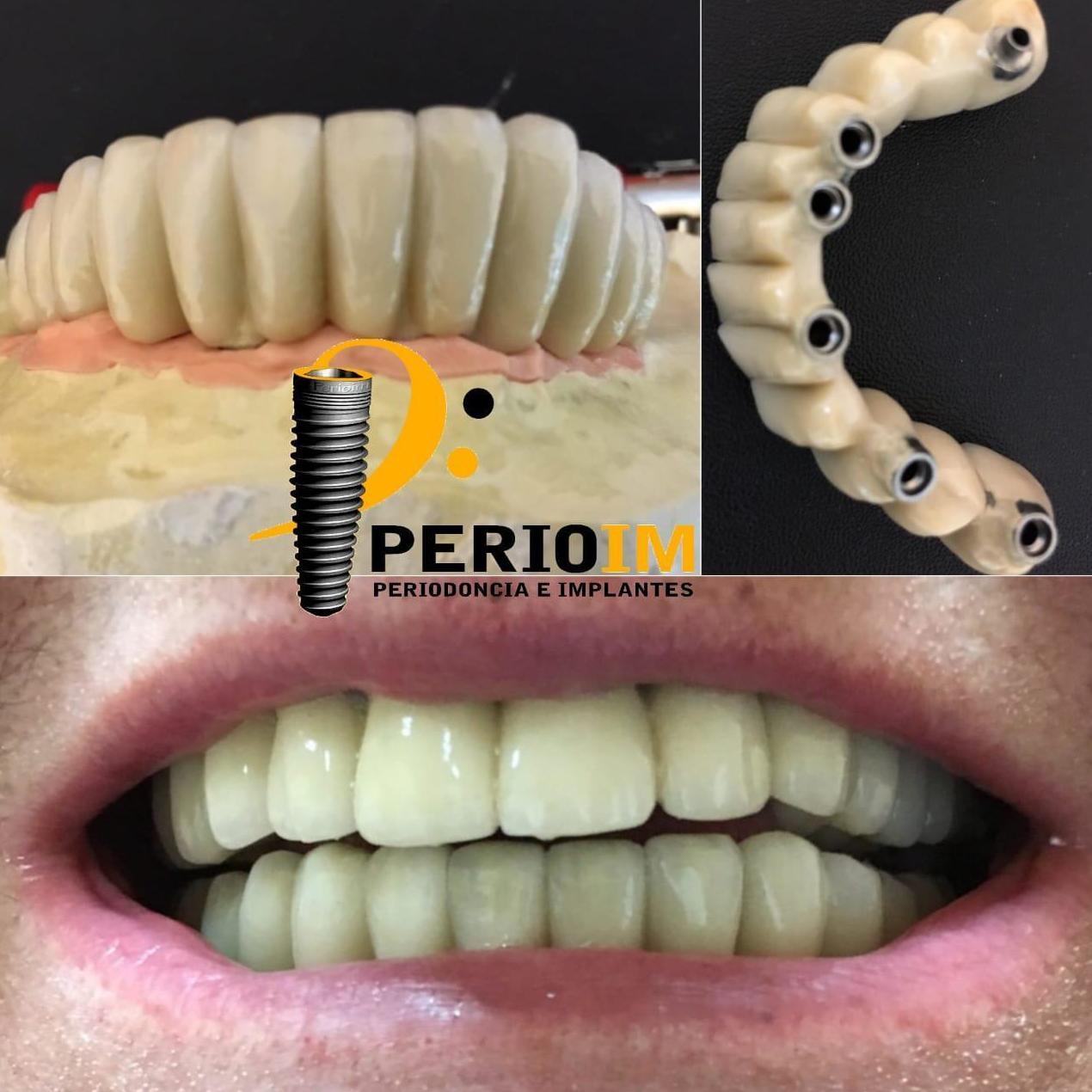 Puente metal cerámico sobre 6 implantes