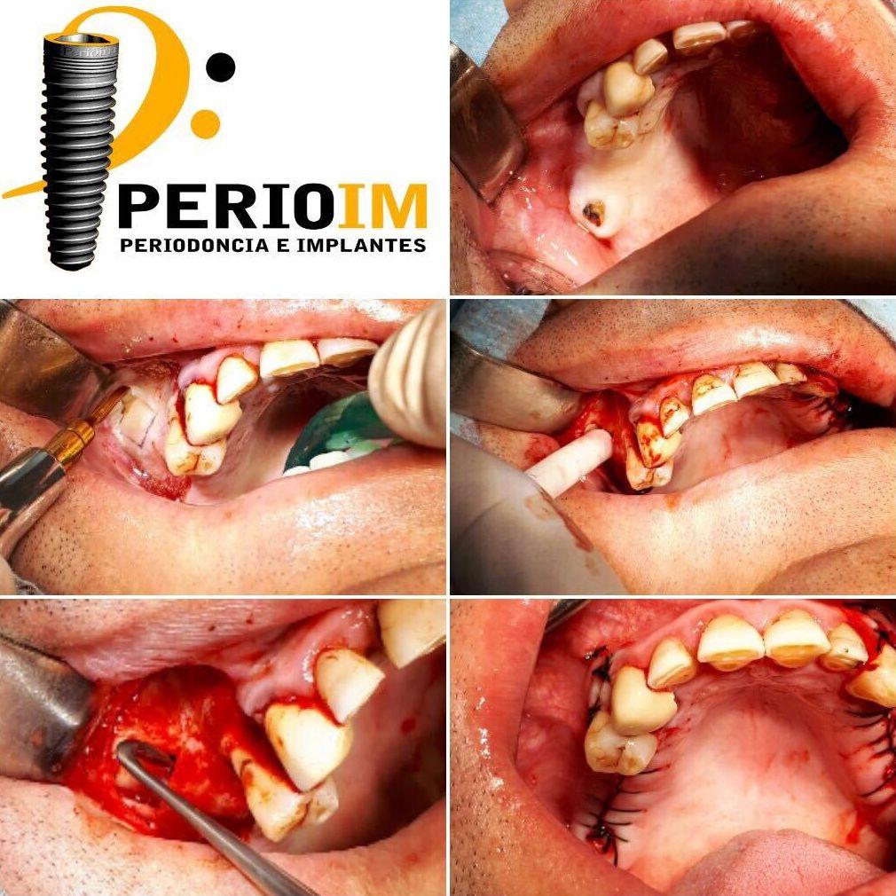 Clínica de cirugía oral o bucal en Madrid