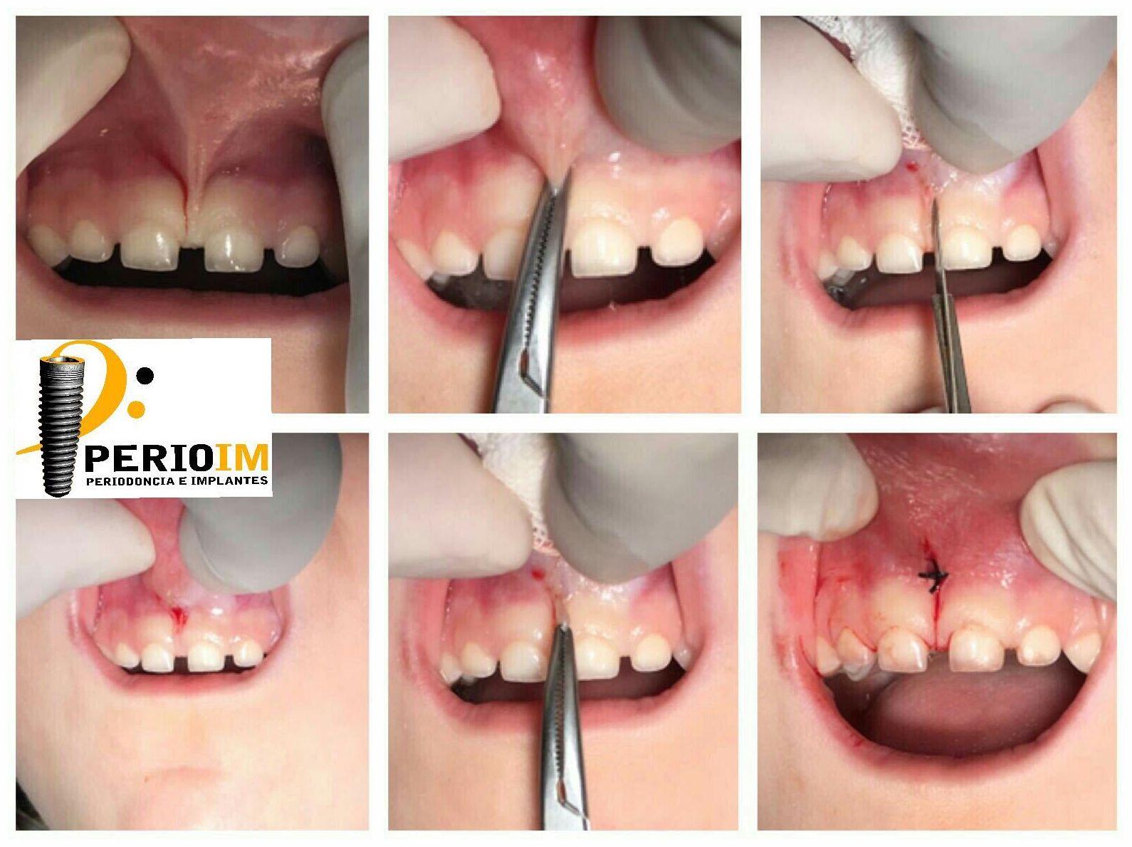 Dentista en Torrejón de la Calzada
