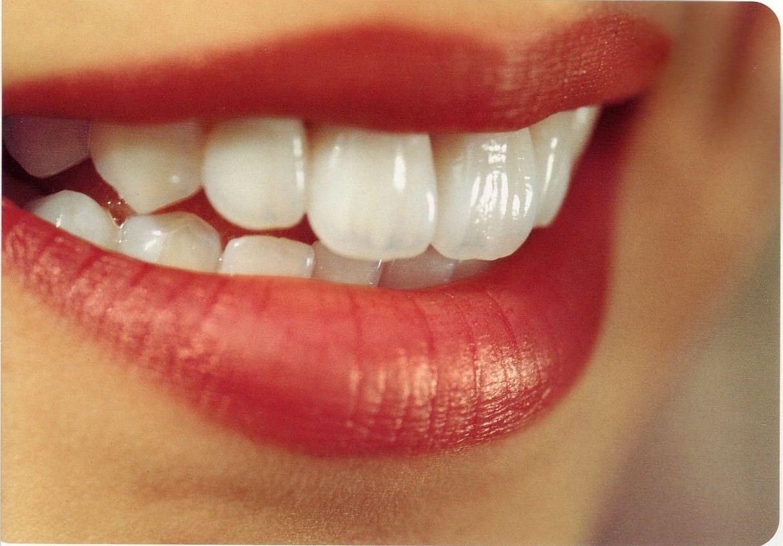 dentista en cadiz javier perez
