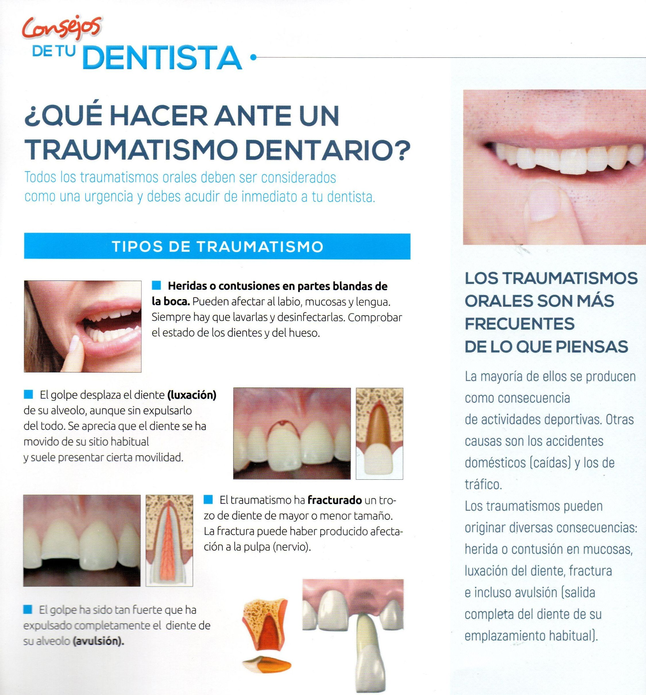 dentista en cadiz javier perez traum 1