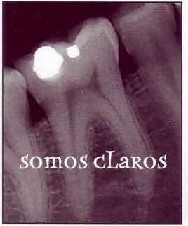 Javier Perez dentista en cadiz somos claros