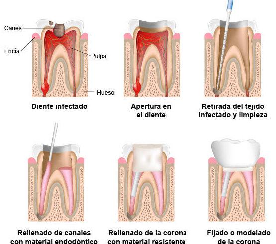Endodoncia dentista Javier Perez