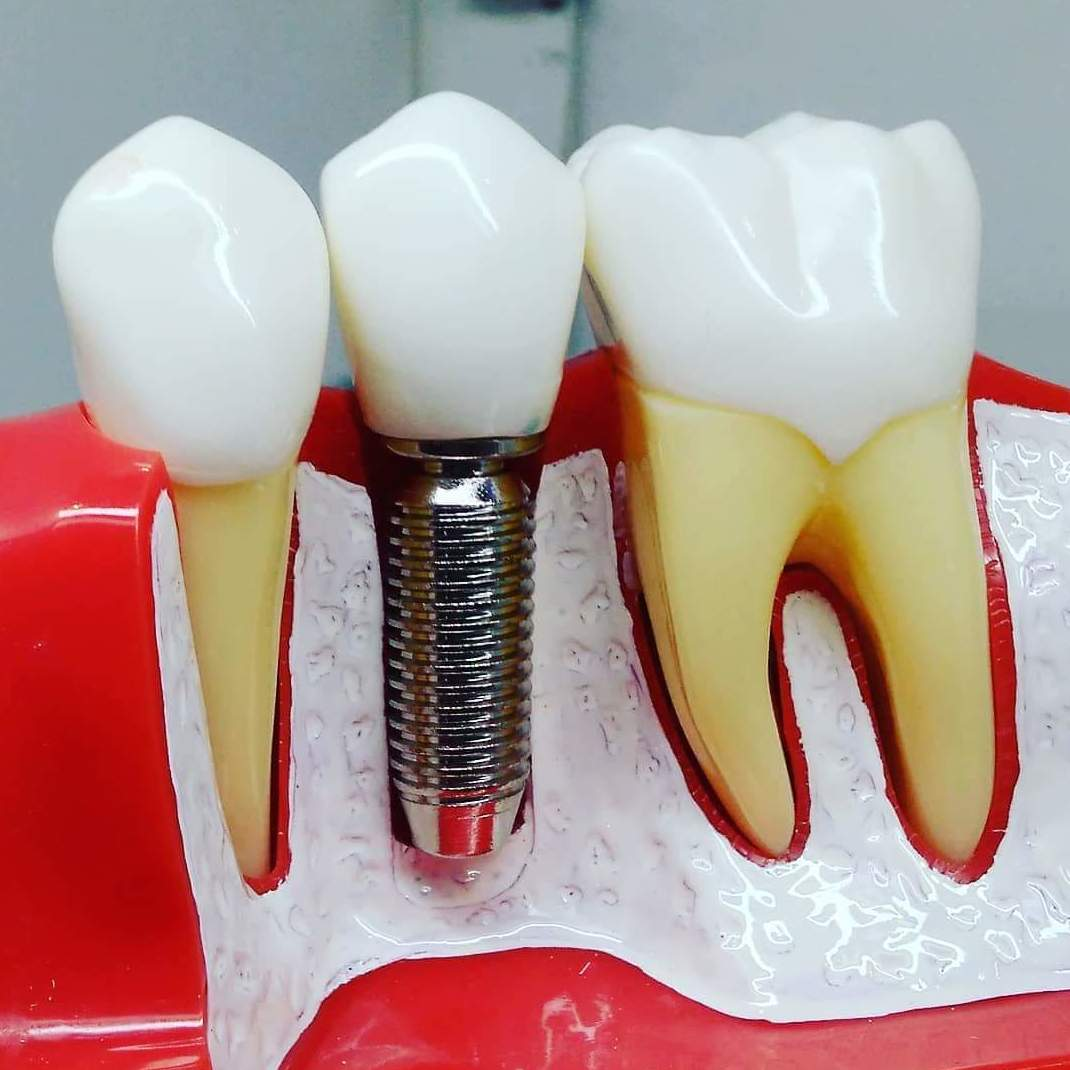 dentista en cadiz implantes arte dental