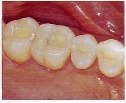 Odontología preventiva´