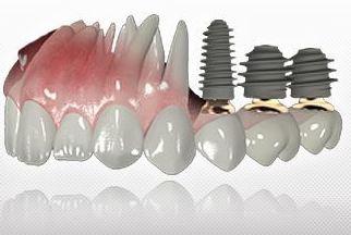 Nuestros implantes en Dentista Javier Pérez