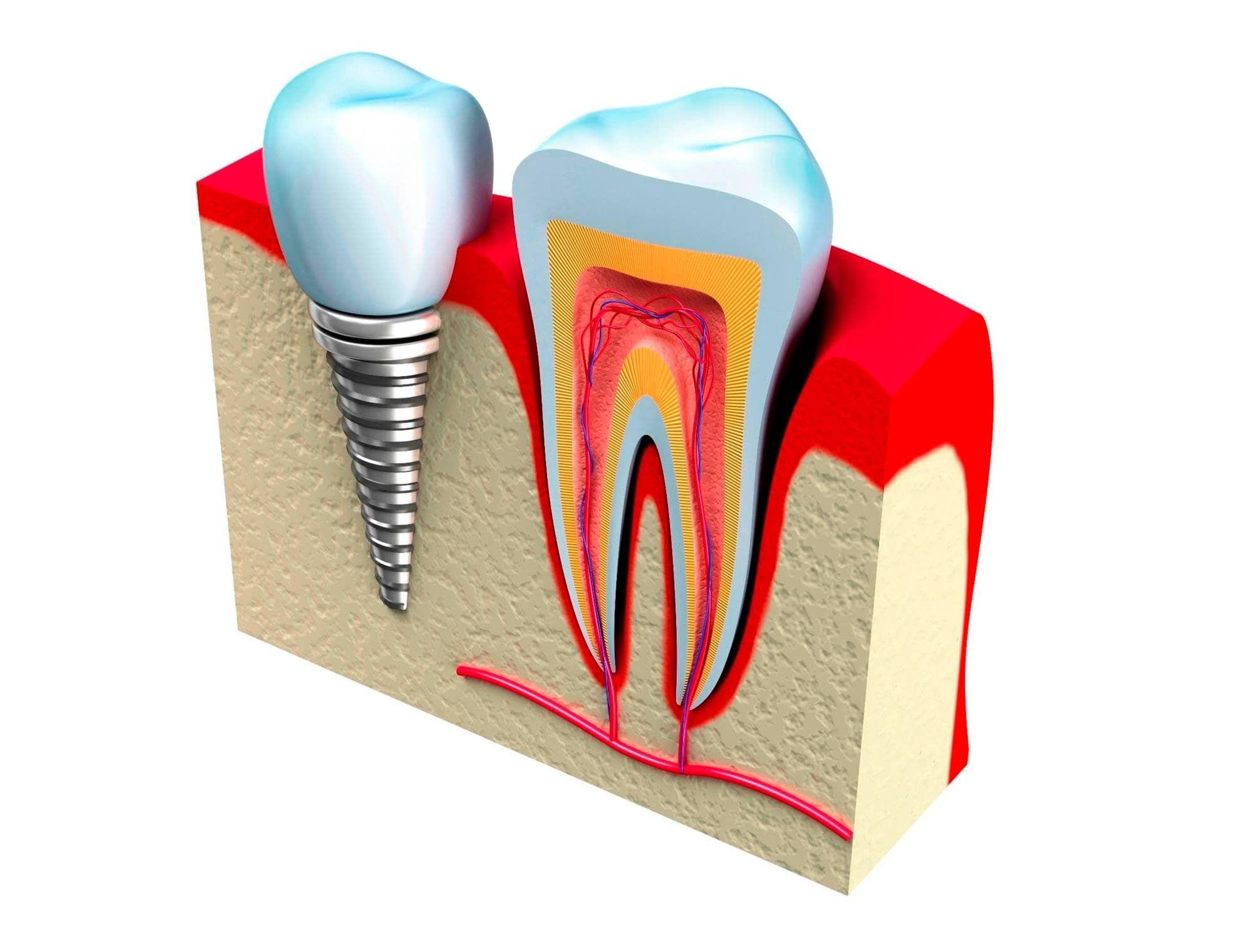 Cirugía y periodoncia: Odontología de Clínica Dental Alai