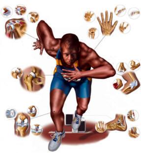 Plan de entrenamiento Zaragoza | Fisioterapia Carlos Perez