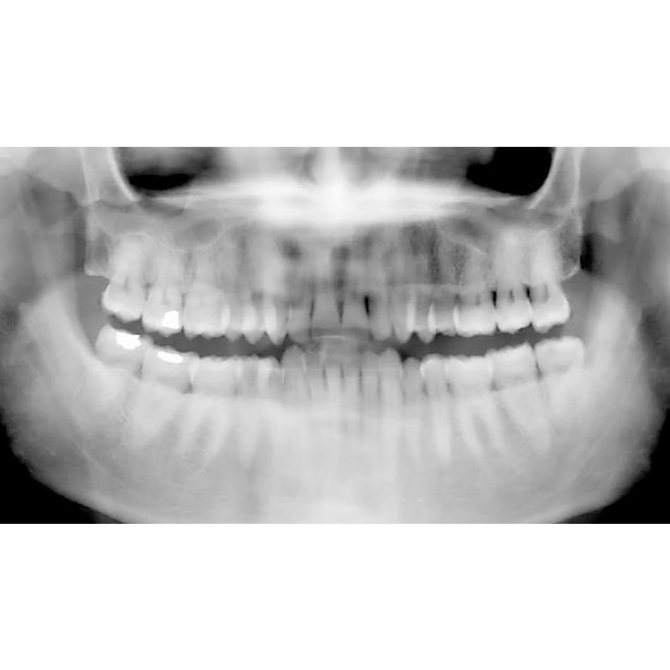 Radiografías panorámicas : Especialidades  de Clínica Dental María Vijande