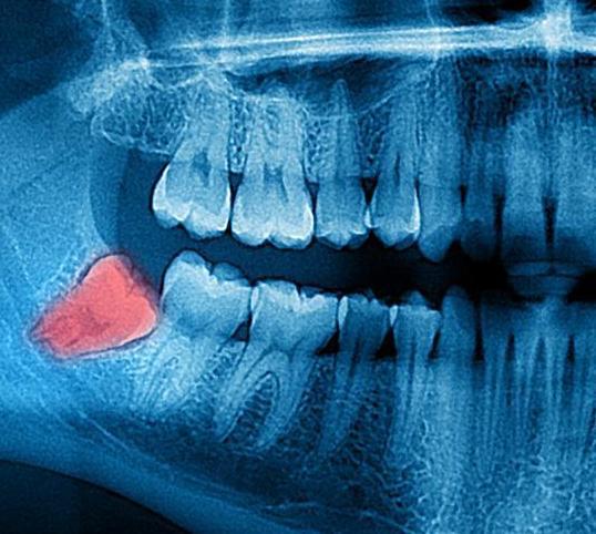 Cirugía bucal: Especialidades de Clínica Dental Dr. Yagüe