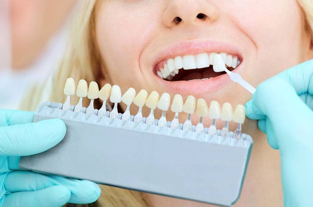Estética dental: Especialidades de Clínica Dental Dr. Yagüe