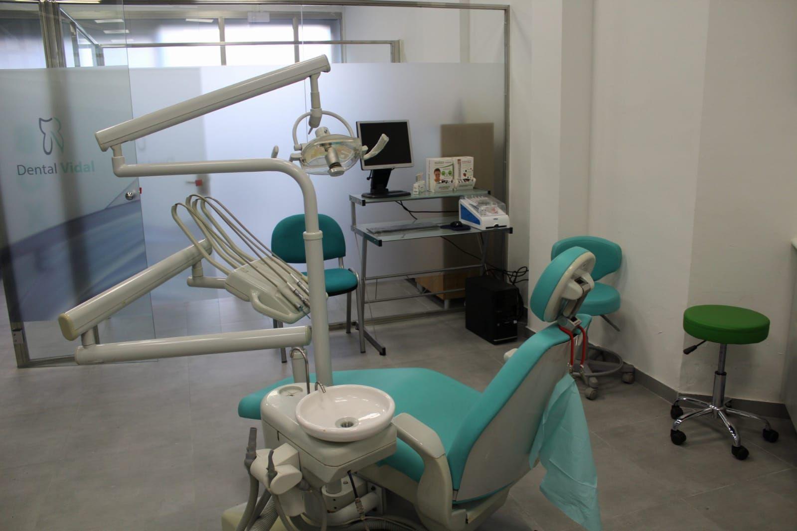 Banqueamiento dental en Sant Vicenç Dels Horts