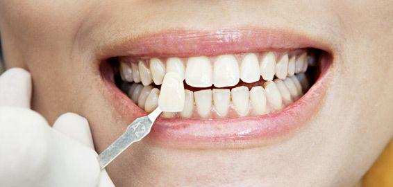 Estética dental: Tratamientos de Clínica De Especialidades Dentales Villaverde