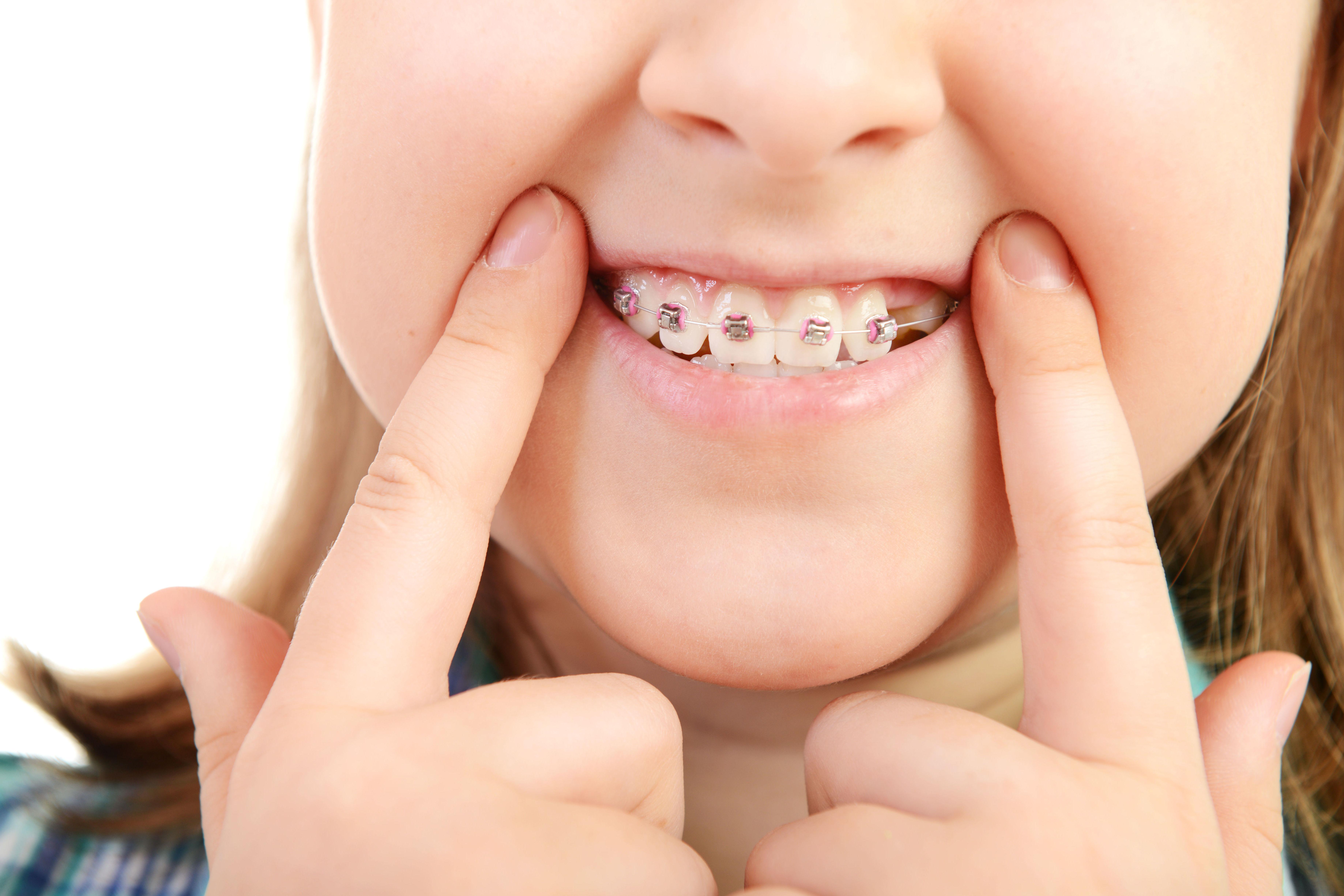 Ortodoncia para niños : Ortodoncia de Isabel Perales Clínica Dental