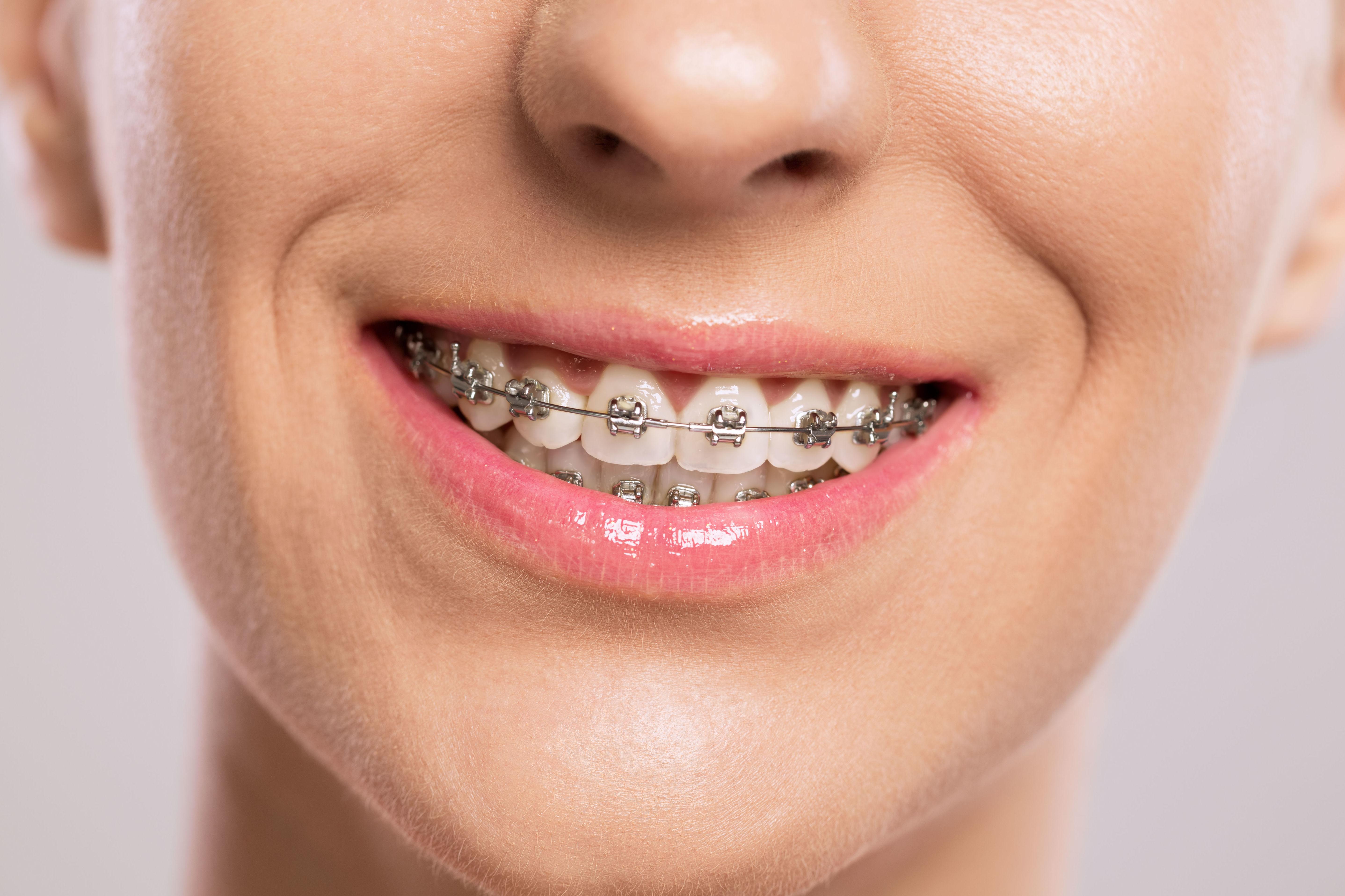 Brackets metálicos: Ortodoncia de Isabel Perales Clínica Dental