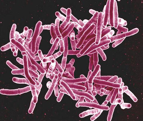 Control de legionella: CATÁLOGO de Biochemical