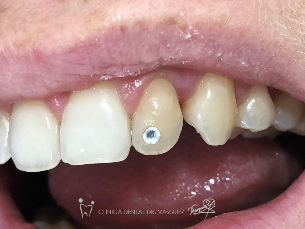 Proceso de implantación de piercing dental