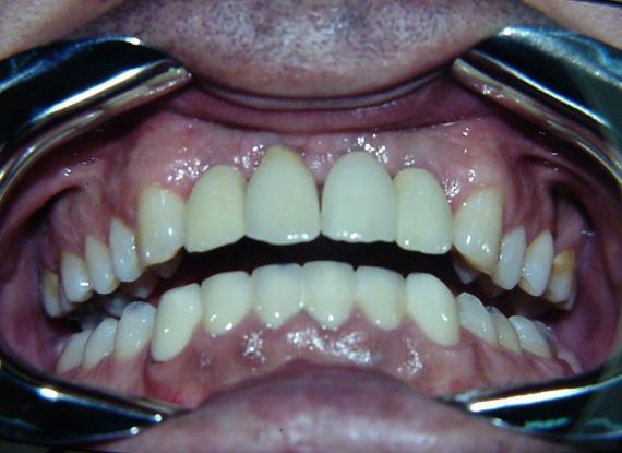 Implantes caso 1 post