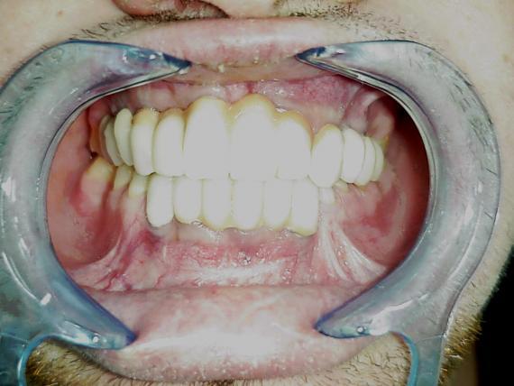 Implantes caso 2 posterior