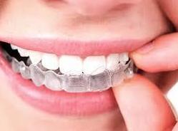 Ortodoncia invible Invisalign