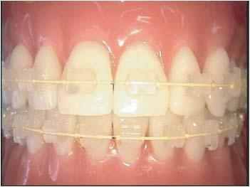 Foto 5 de Clínicas dentales en Zaragoza | Alberto Pardo Sancho