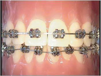 Foto 6 de Clínicas dentales en Zaragoza | Alberto Pardo Sancho