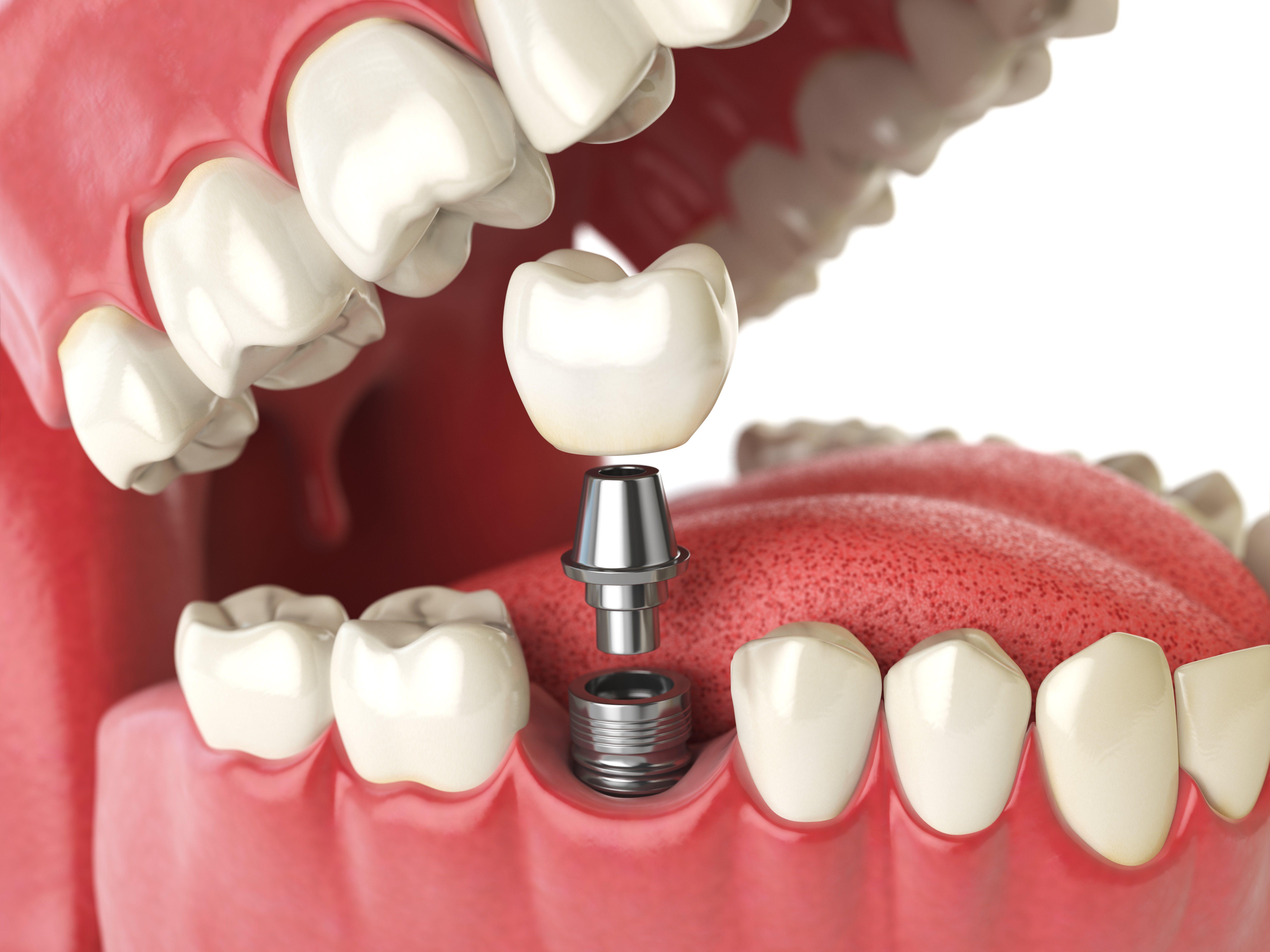 Implantes: Servicios de Romo de Clínica Dental Romo