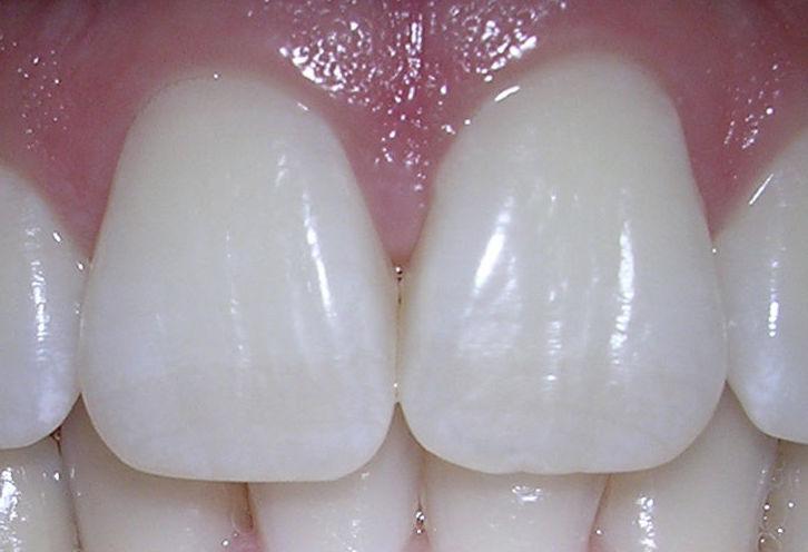 Blanqueamientos dentales: Tratamientos de Clínica Blanco Dental